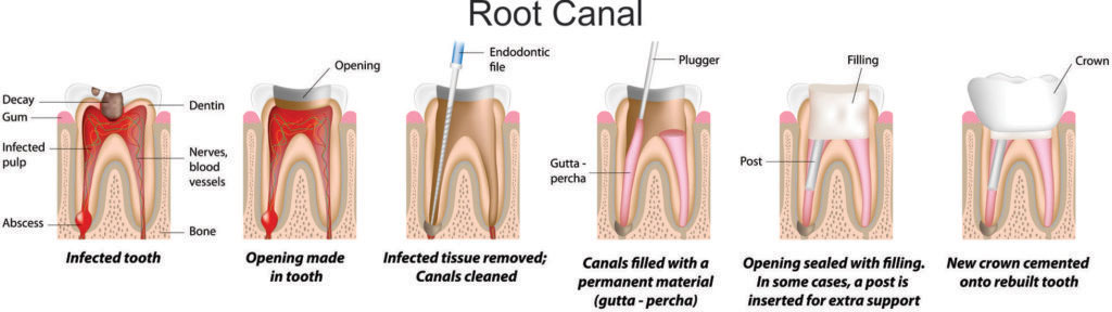 Root-Canal-Treatment Process in Images
