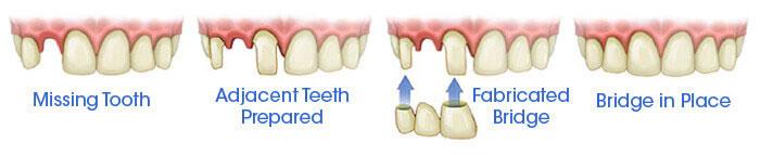 Dental Bridges Cost and Procedure