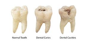 Dental-Cavities-Over-Time