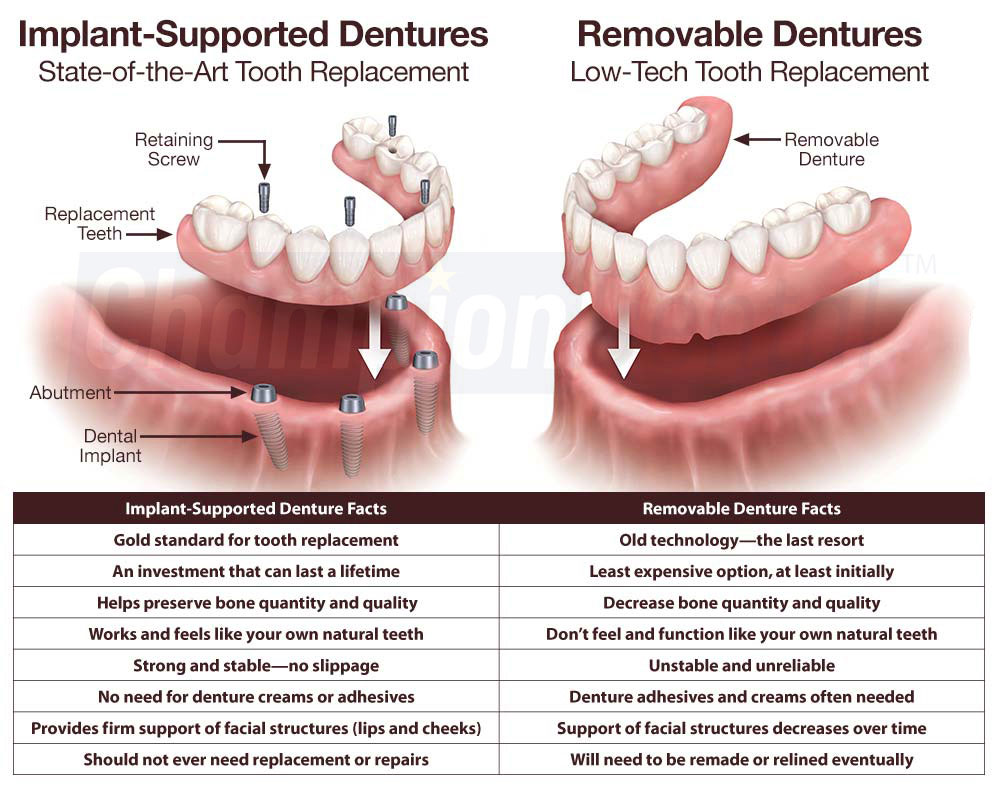 Permanent Dentures vs Removable Dentures Pros and Cons