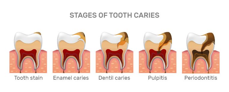 Stages of Tooth Decay Before Dental Cavity Filling