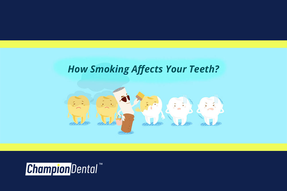 Tooth Decay Caused By Cigarette Tobacco Smoking