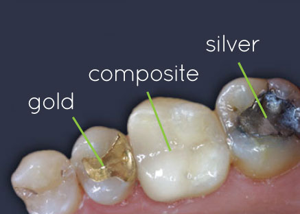 Types of Cavity Composite Material Side-by-Side Comparison