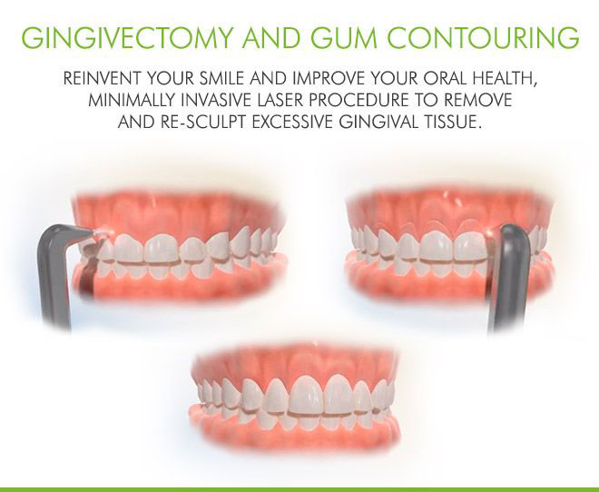 gingivectomy-gum-contouring-farmers-branch