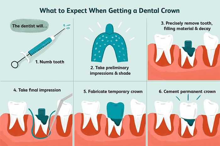 what-to-expect-when-getting-dental-crown-procedure